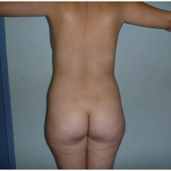 25-34 year old woman treated with Brazilian Butt Lift before 3266331