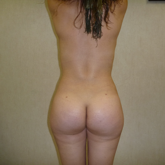 25-34 year old woman treated with Brazilian Butt Lift after 3266331