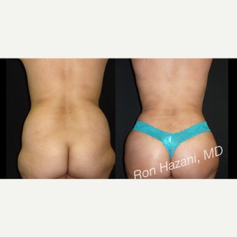 35-44 year old woman treated with Liposuction before 3720928
