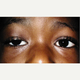 4-5 year old young man before and after bilateral fascia lata frontalis slings for congenital ptosis before 3042168