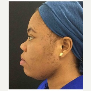 25-34 year old woman treated with Non Surgical Nose Job before 3219654
