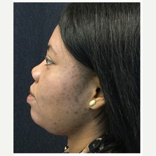25-34 year old woman treated with Non Surgical Nose Job after 3219654