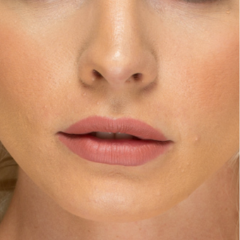 25-34 year old woman treated with Lip Augmentation after 3577758