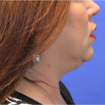 45-54 year old woman treated with Kybella after 3579712