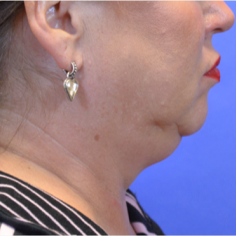 45-54 year old woman treated with Kybella before 3579712
