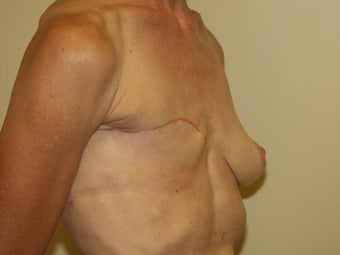 Breast Reconstruction 735387
