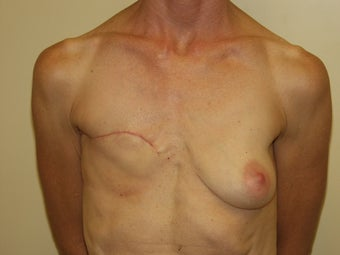 Breast Reconstruction before 735387