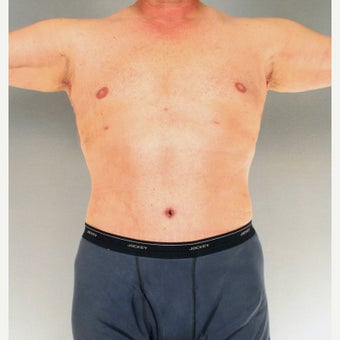 45-54 year old man treated with Tummy Tuck after 1661849