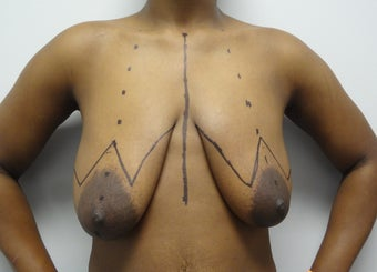 28 year old woman who underwent breast reduction before 961555