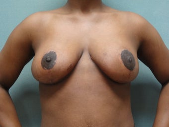 28 year old woman who underwent breast reduction after 961555
