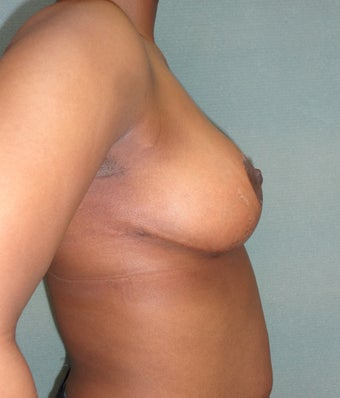 28 year old woman who underwent breast reduction 961555