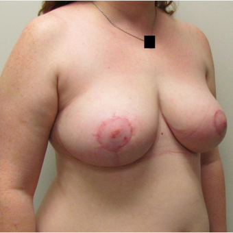 Breast Reduction for this 26 Year Old Woman after 3030440