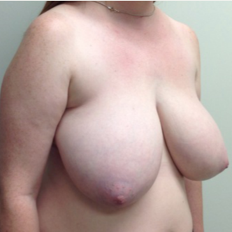 Breast Reduction for this 26 Year Old Woman before 3030440