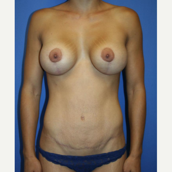 25-34 year old woman treated with Mommy Makeover after 2993973
