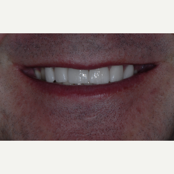 35-44 year old man treated with Porcelain Veneers after 3650388