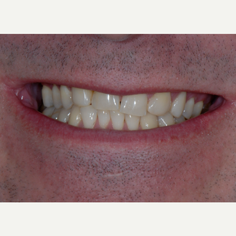 35-44 year old man treated with Porcelain Veneers before 3650388