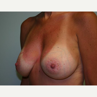 Breast Augmentation after 3560783