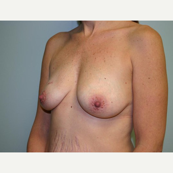 Breast Augmentation before 3560783