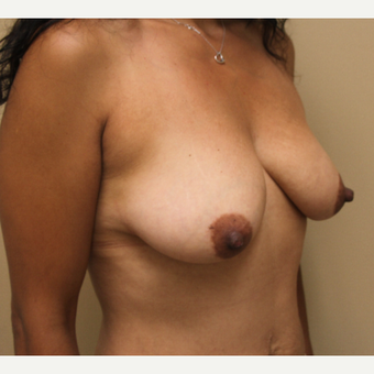 35-44 year old woman treated with Breast Lift before 3501490