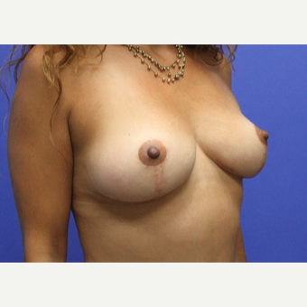 35-44 year old woman treated with Breast Lift after 3501490