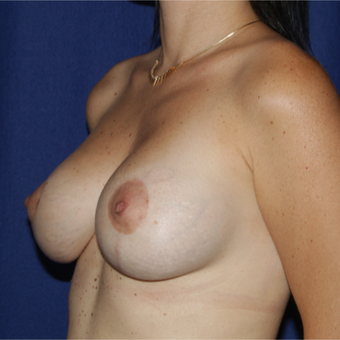 25-34 year old woman treated with Breast Lift with Implants after 3164865