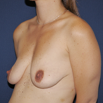 25-34 year old woman treated with Breast Lift with Implants before 3164865