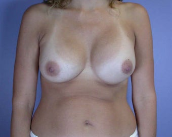 Breast Asymmetry Correction after 281337