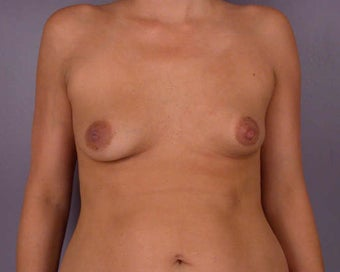 Breast Asymmetry Correction before 281337