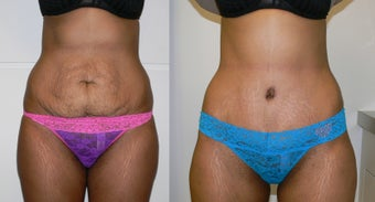 Loose skin and stretchmarks after a pregnancy before 1405873