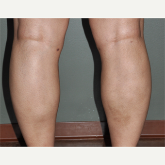 35-44 year old woman treated with Liposuction after 3318013