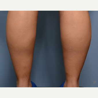 35-44 year old woman treated with Liposuction before 3318013