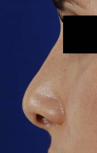 25-34 year old woman treated with Revision Rhinoplasty before 1750775