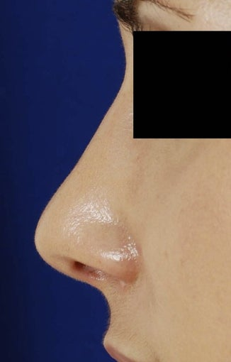 25-34 year old woman treated with Revision Rhinoplasty after 1750775