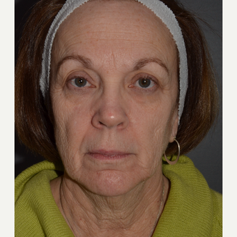 Pre and Post-OP photos of Phenol Croton Oil Peel and Lower Facelift with Submentoplasty before 3108164