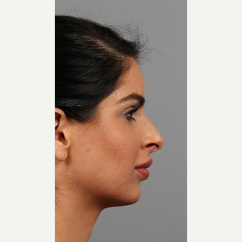 25-34 year old woman treated with Rhinoplasty before 3287118
