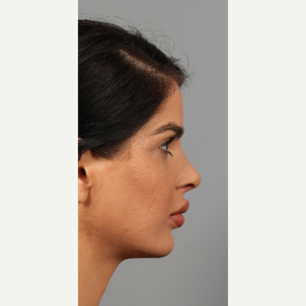 25-34 year old woman treated with Rhinoplasty after 3287118