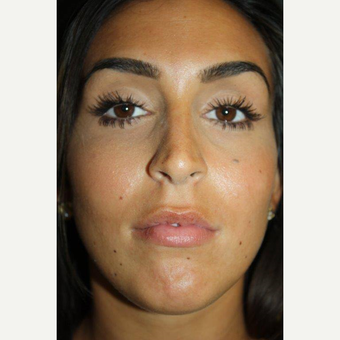 25-34 year old woman treated with Lip Augmentation before 3657835