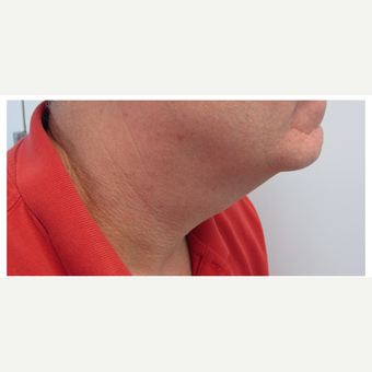 35-44 year old man treated with Kybella before 2829904