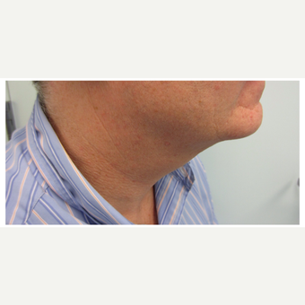 35-44 year old man treated with Kybella after 2829904