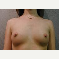 18-24 year old woman treated with Breast Implants before 3108998