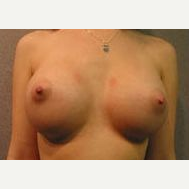 18-24 year old woman treated with Breast Implants after 3108998