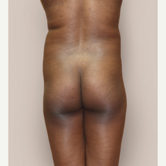 25-34 year old woman treated with Brazilian Butt Lift before 3452599