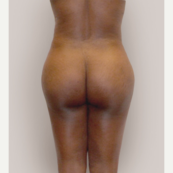 25-34 year old woman treated with Brazilian Butt Lift after 3452599