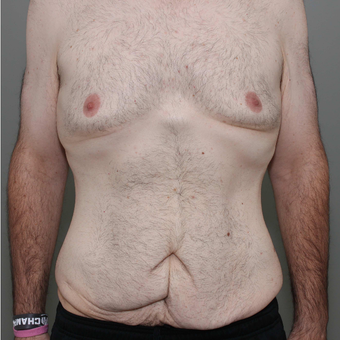 25-34 year old man treated with Tummy Tuck before 3069738