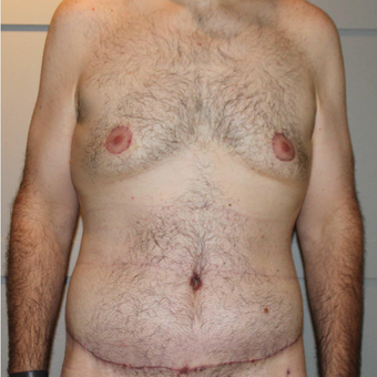 25-34 year old man treated with Tummy Tuck after 3069738