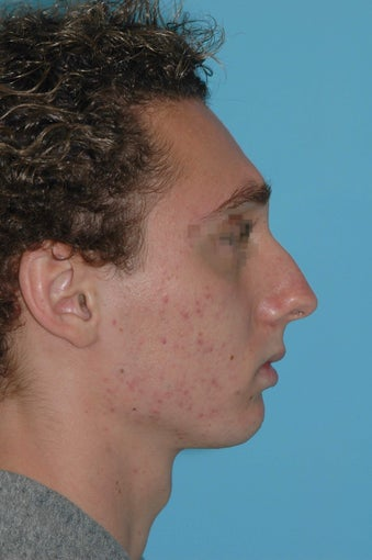 19 year old male after rhinoplasty before 3324021