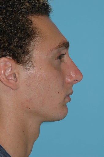 19 year old male after rhinoplasty after 3324021