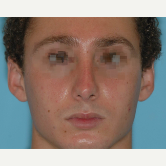 19 year old male after rhinoplasty 3324021
