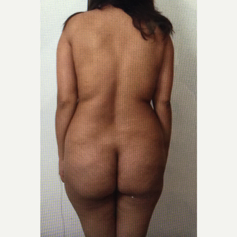 25-34 year old woman treated with Brazilian Butt Lift before 3059789