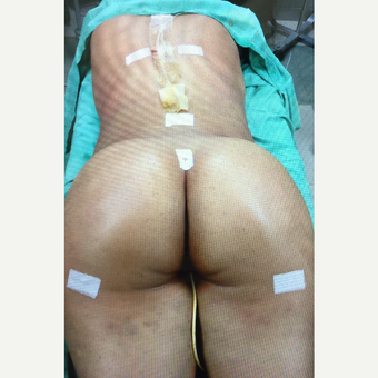 25-34 year old woman treated with Brazilian Butt Lift after 3059789